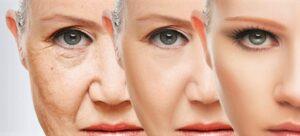 A-qué-edad-usar-cremas-antiarrugas